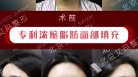 【北京艾玛整形】个体脂肪填充面部案例,恢复事项