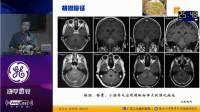 神经影像征象解析-江桂华、汪文胜、张志强