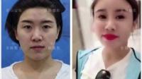 北京脂肪移植那些特点京韩修复专利技术视频