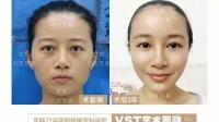 北京维密体雕吸脂减肥效果怎么样京韩王沛森对比案例