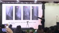 中医针灸视频,冯际良膝关节治疗思路及病例分享