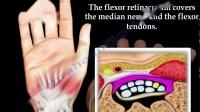 手及腕关节超声 13 腕管综合征解剖 arpal Tunnel Syndrome ,anatomy ,animati