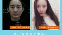 北京脂肪移植价格费用多少京韩修复专利案例视频