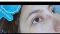 眼综合术后拆线即刻,眼型弧度完美自然‼️又大又有神,恢复的很好哦!