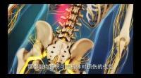 腰部拉伤腰扭伤的原理骨科3D动画视频讲解正骨推拿学习必备神器