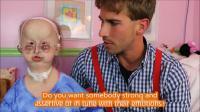 Hallermann-Streiff Syndrome
