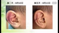019_耳伤案例(小孩)