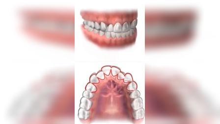 隐形牙套是怎么矫正牙齿的?「大连齿医生口腔正畸中心」「大连口腔医院」大连隐形正畸费用 矫正牙齿大概多少钱 矫正牙齿费用 矫正牙齿价格表