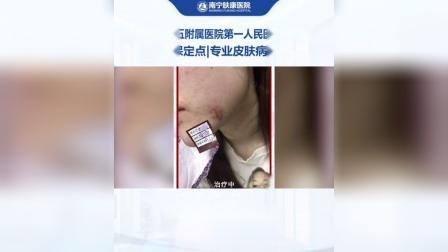 南宁肤康皮肤病医院-广西医科大附属人民医院医联体-手术疤能去掉费用多少-祛疤痕最有效方法 伤疤好了有黑印怎么办-激光去疤痕有效吗 疤痕增生多久可以变平